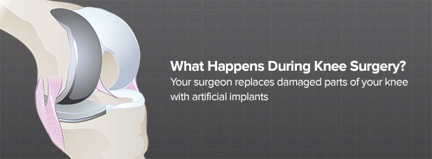 what-are-surgical-options-for-knees