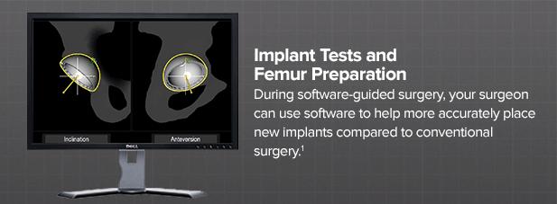 implant-tests-and-femur-preparation