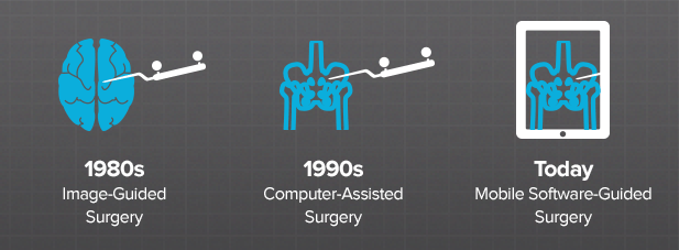 is-software-guided-surgery-new