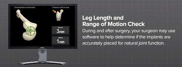 leg-length-and-range-of-motion