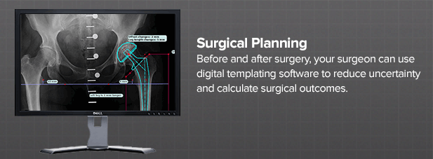 surgical-planning