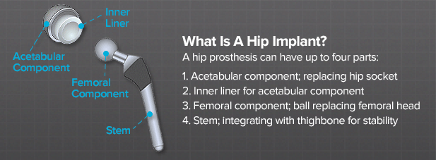 care of hip prothesis