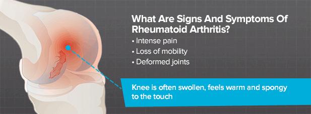 What Is Rheumatoid Arthritis Of The Knee Brainlab Org