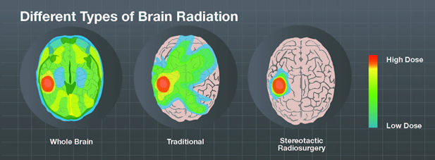 Different types of brain radiation
