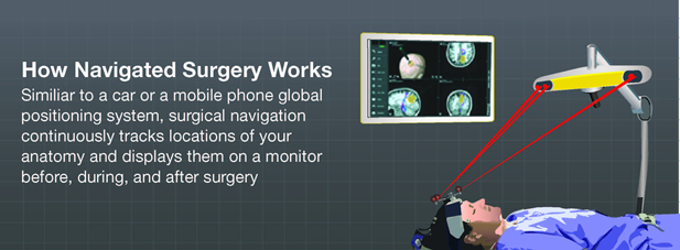 How image guided surgery works