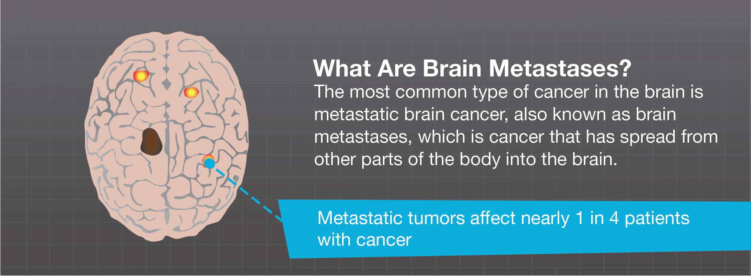What Are Brain Metastases