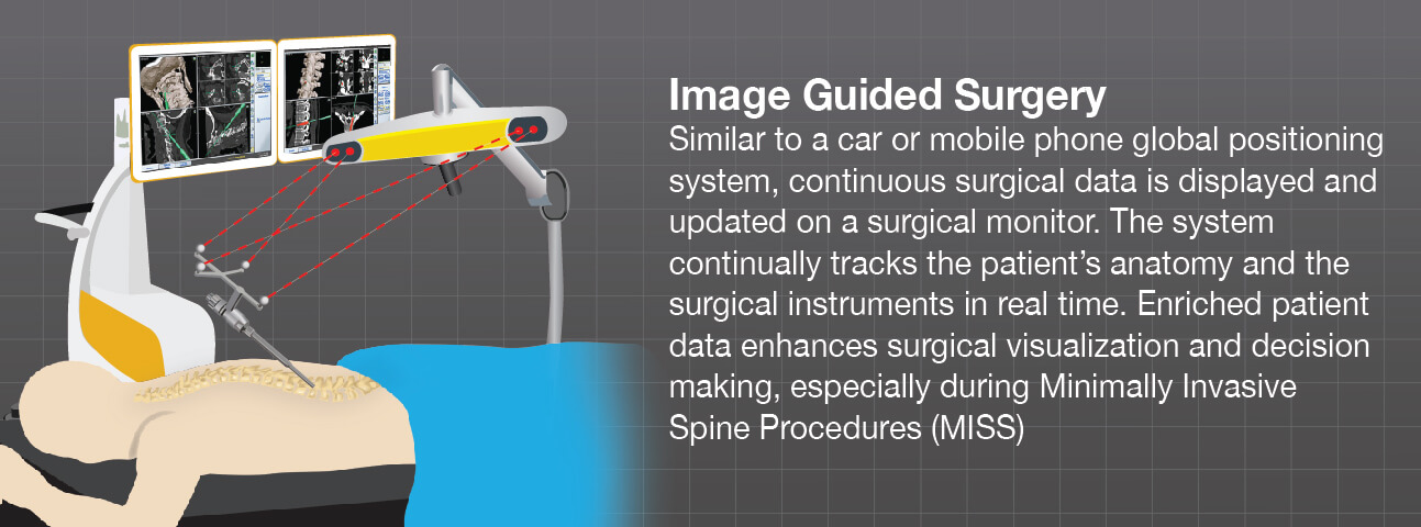 Surgical navigation improves the visualization of the surgeon before, during and after the procedure
