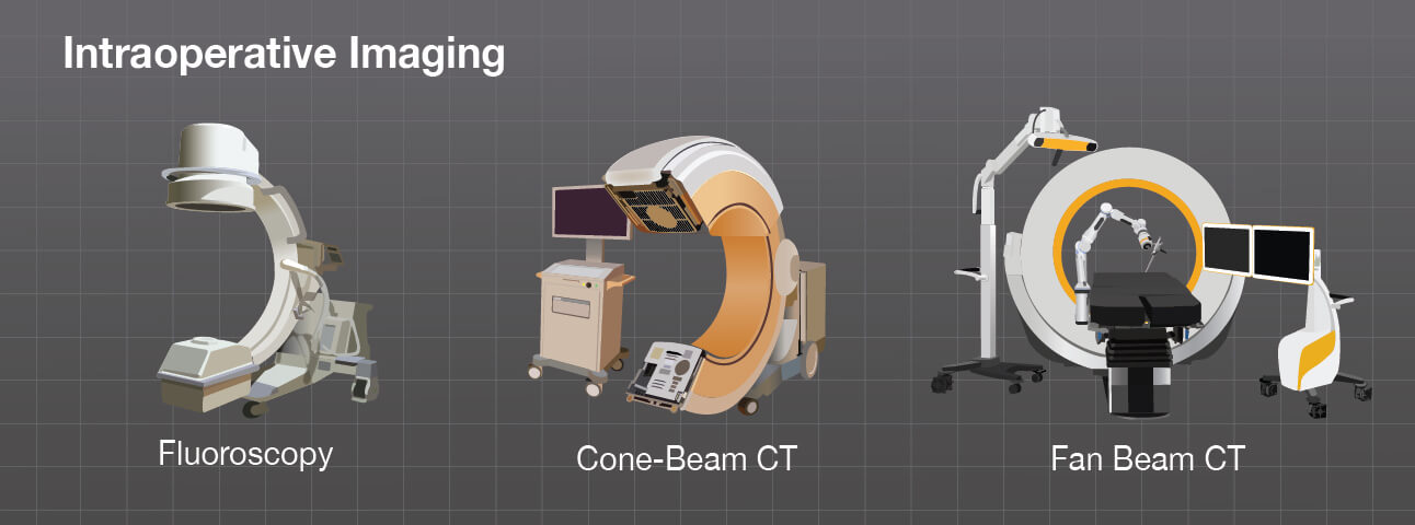 Evolution of Intraoperative Imaging Devices